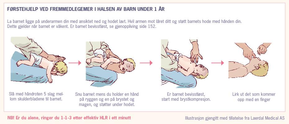 Førstehjelp ved fremmedlegemer i halsen