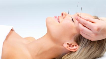 Akupunktur mot kvalme i svangerskapet? Kanskje verdt et forsøk? Illustrasjonsfoto: iStock