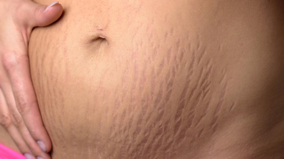 gravid kløe