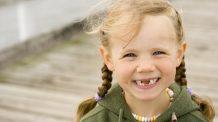 Barn miste tann