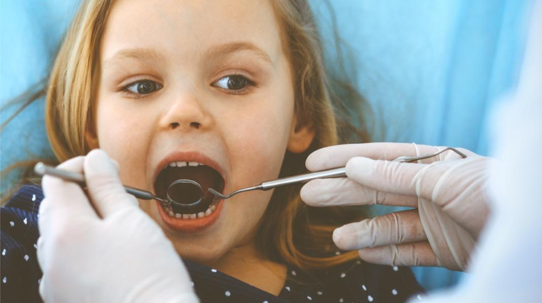Vanligere at barn har mange hull i tennene