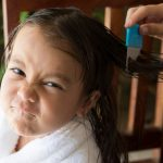 head-lice-treatment-picture-id515199274