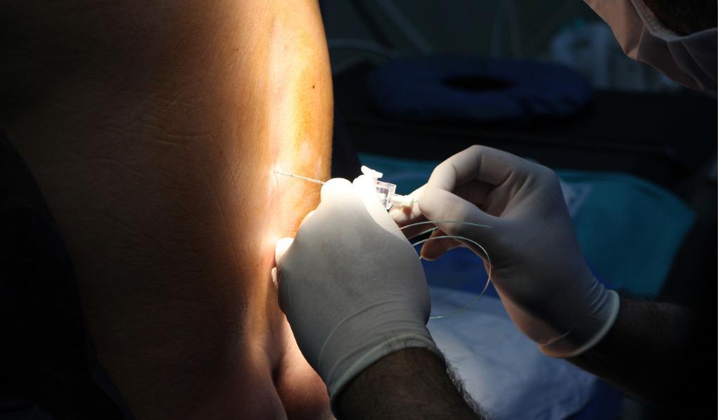 Mange fødende velger å få epidural. Illustrasjonsfoto: iStock
