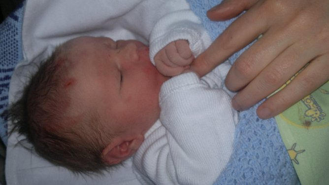 Levi har noen merker og arr etter å ha blitt tatt med tang. Men ifølge mammaene hans er han en skikkelig tøffing. Foto: privat