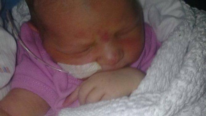 En nyfødt liten lillesøster. Hun fikk en tøffere start på livet enn de fleste. Foto: privat