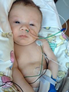 Leo Nikolai fikk en tøff start på livet. Tre ganger har han vært innlagt på Rikshospitalet, men dagsturene er det enda flere av. Foto: privat
