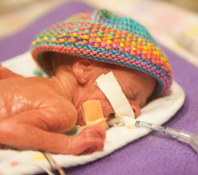 Et annet barn fotografert på nyfødtintensiven, Bridget Jordan, to uker gammel.