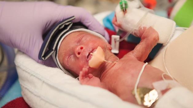 Walker fem dager gammel. Nå kunne foreldrene holde ham for første gang.