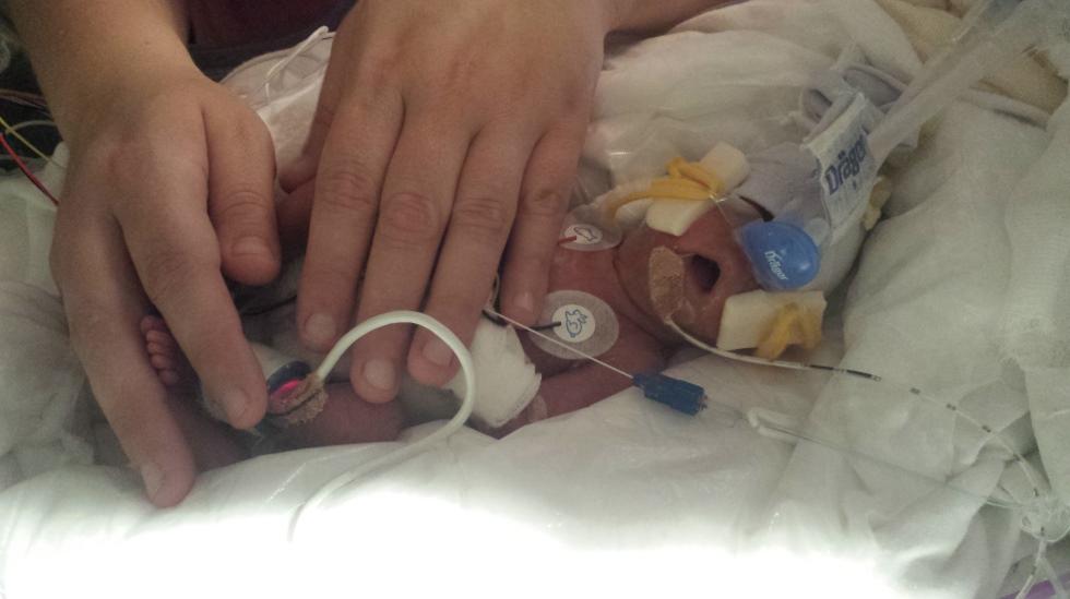 Lille Sofie ble født i uke 24+1. Her er hun ni dager gammel. Alle foto: privat