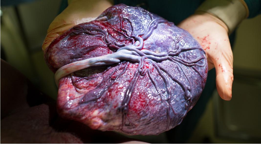 Morkaken har mange livsviktige funksjoner. I tillegg til å forsyne fosteret med næring og oksygen og transportere avfallsstoffer, produserer den også hormoner. Den beskytter til en viss grad også fosteret mot skadelig påvirkning. Illustrasjonsfoto: iStock