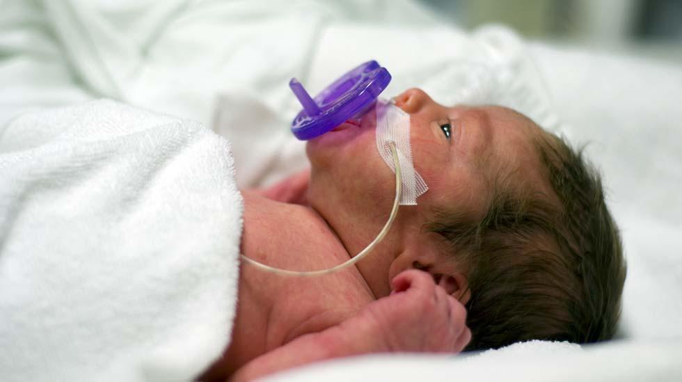 Premature babyer får noen ganger smokk samtidig som de får melk i sonden. Da lærer de å koble sammen sutting og metthetsfølelse. Foto: Shutterstock