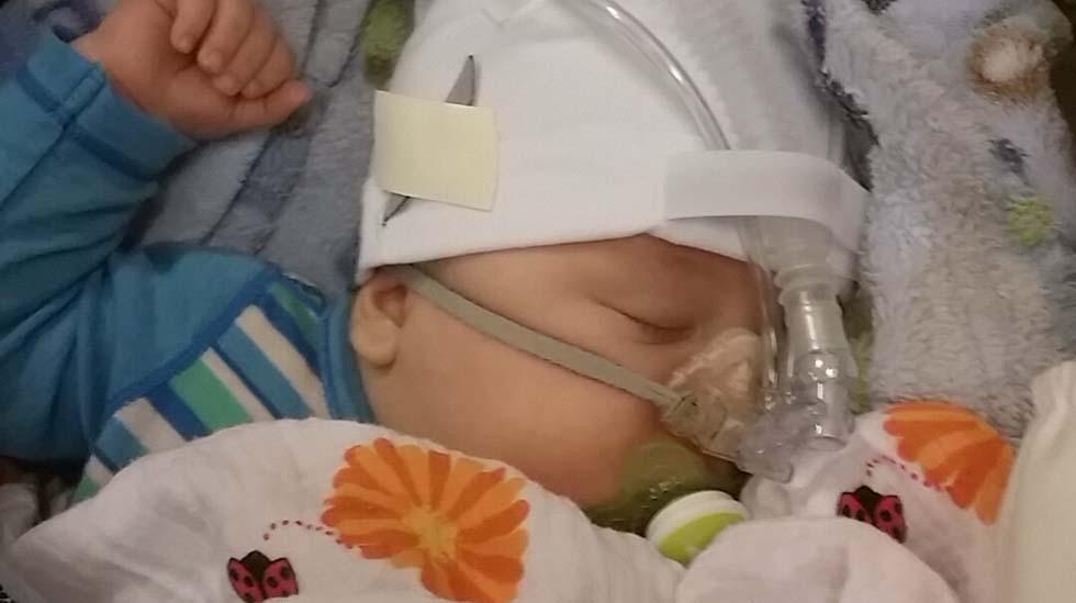 Even Kjellbakk Halvorsen (snart 4 måneder) måtta ligge med CPAP som pustehjelp i fire dager. Foto: privat