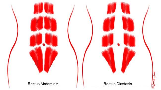 Illustrasjonen til venstre viser normale magemuskler etter svangerskap, mens den til høyre viser magemuskler som har sklidd fra hverandre.