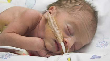 Noen babyer trenger pustehjelp, andre trenger bare litt hjelp til å holde varmen og lære å spise.