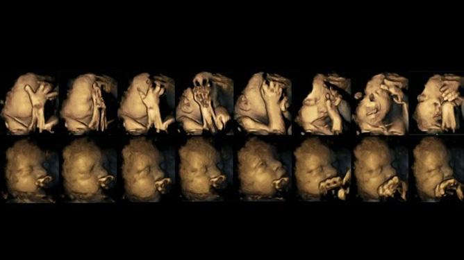4-d ultralydbilder som viser sekvenser med bevegelser av to fostre i uke 32. Det øverste har en mor som røyker, det nederste har en ikke-røykende mamma.