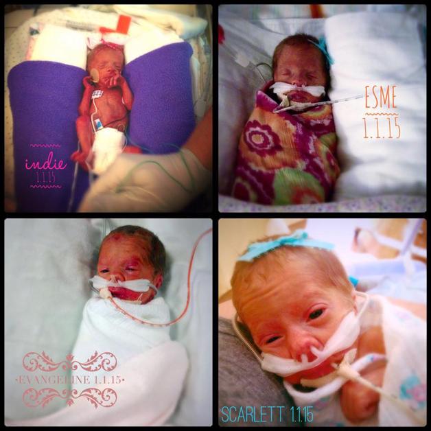Disse bildene er tatt 1. januar 2015, og jentene er fire dager gamle.