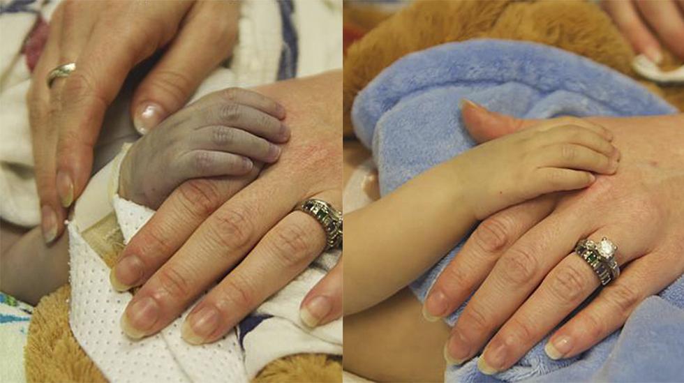 I går – knust. I dag – helt ny. Lincoln før og etter hjertetransplantasjonen (tatt med mindre enn 24 timers mellomrom) Foto: Danielle Wakefield - www.akbirthphotographer.com