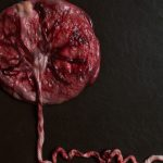 placenta-picture-id1279177800