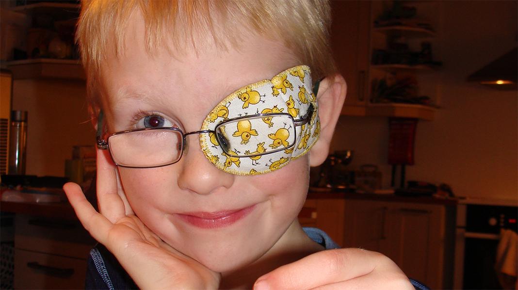 Ask med tøylapp for det friske øyet. Siden han ble allergisk for limet på plasterlappene, var mor og sønn kjempefornøyde med at det fantes andre alternativer på markedet. Alle foto: privat